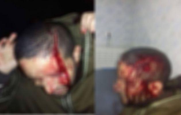 إعتداء بالعنف على مستوى الرأس